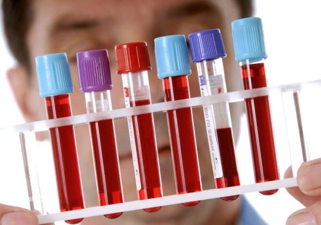 Экспресс-тесты на ХГЧ