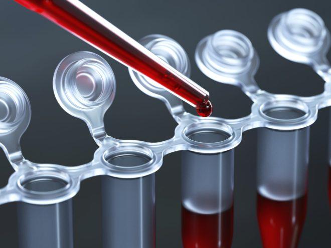 Как расшифровать исследование крови на АТ